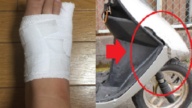 【スカッと】無断駐車男「お前のバイクが倒れてきて足の指を骨折した!慰謝料よこせ!」俺「ほう…じゃあ白黒はっきりつけようか」⇒ 結果・・・