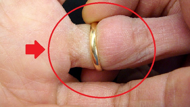 【豆知識】外せなくなってしまった指輪を、○○を使って簡単に外す方法があった!(動画あり)