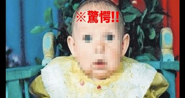 【驚愕】生まれてきた娘の顔を見た父親は恐怖のあまり家族を捨てた!⇒ その21年後、この家族に奇跡が・・・