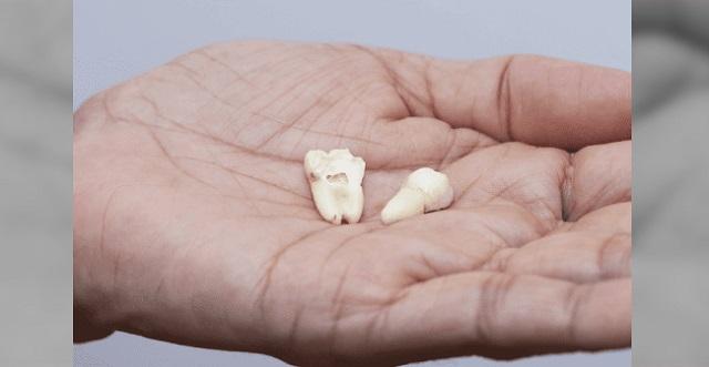 【注意喚起】歯科医師が注意喚起!事故によって歯が抜けた時に『絶対にやらないで欲しいこと』→ なぜなら・・・