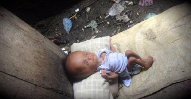 「障害を持つ子は育てられない」と育児放棄をした母親の信じられないまさかの行動!そして子供の運命は・・・