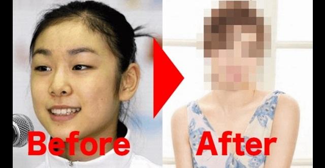【驚愕】元フィギュアのキム・ヨナが整形手術で大変貌!?その衝撃の姿がこちら!!