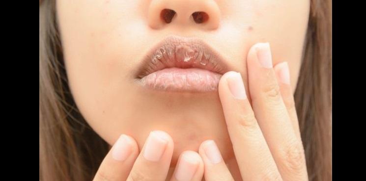 【驚愕事実】唇の乾燥や吹き出物・・・唇が教えてくれる体の状態8選