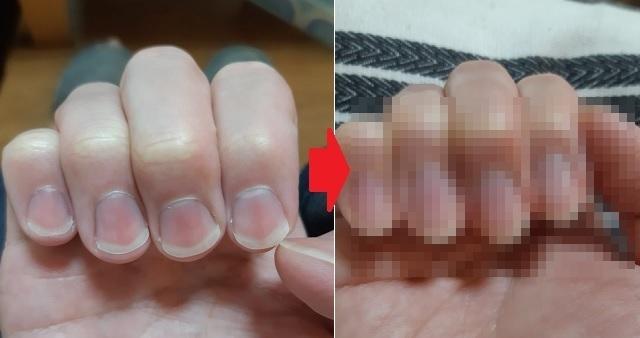 【驚愕】1年間爪をケアし続けた結果・・・ビフォーアフターに衝撃の声!「爪の形変えられるの初めて知った」