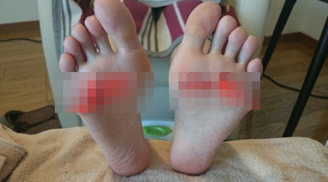 【閲覧注意】デート中、彼女「なんか足の裏が痛い」⇒ 普通にデートを続行して、帰って彼女の足の裏を見たら・・・