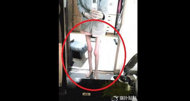 【衝撃】年齢23歳の女性。拒食症で身長が163cmなのに体重が僅か27キロの悲惨な姿がヤバ過ぎる・・・