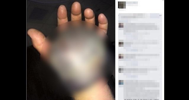 【恐怖】ガラガラヘビに噛まれた手が「恐ろしい状態に」に・・・これは酷すぎる!(※閲覧注意)
