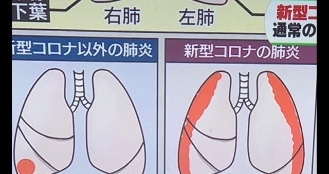 【衝撃】某テレビ番組で紹介されていた『肺炎』と『新型コロナ』の違いがわかりやすい!!→ 「こう見ると改めてコロナのヤバさが分かる」