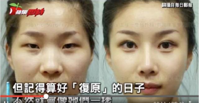 【驚愕】韓国で整形した結果顔が変わり過ぎて…パスポートと不一致で帰国できなくなった!?女性たち10選