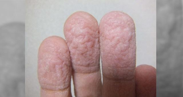 【驚愕の真相】「ふやけていたわけではなかったのか…」→『水で指がシワシワになる』まさかの理由に驚愕!